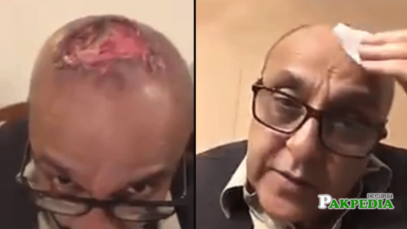Actor Sajid Hasan shares botched hair transplant result on social media